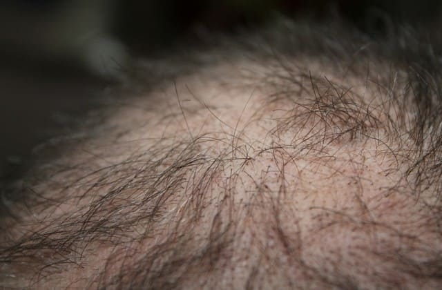 Cara Mengatasi Rambut Rontok Secara Alami – Gunakan Bahan-Bahan Ini, Rambut Semakin Kuat dan Lebat